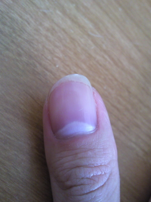 I M Late For The Party But Here Is How My Thumb Looks At Moment You Can T See It Too Well In Picture Nail Curved Similar To Yours