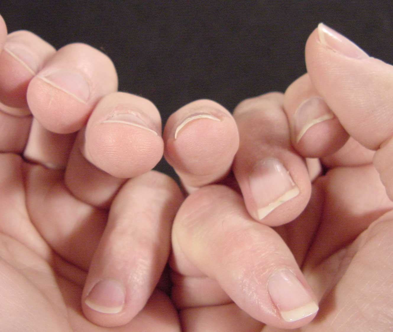 Changing the contour of the nail